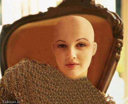 image عکس های دیدنی از معروف ترین زنان کچل در دنیا