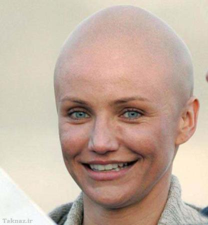 image, عکس های دیدنی از معروف ترین زنان کچل در دنیا