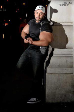 image تصاویر مسخره از مردی با عجیب ترین مدل بازو