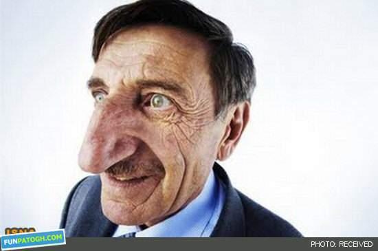 image تصویر بامزه مردی با بزرگترین دماغ در جهان
