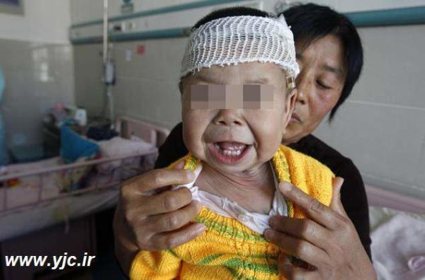 image عکس های تاسف بار نوزادی که یک پیرزن متولد شده