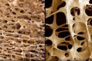 image بهترین درمان پوکی استخوان کلم بروکلی ماست آلوی سیاه