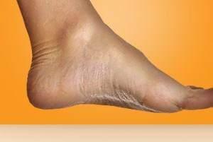 image درمان خانگی درد و کوفتگی در پاها در پایان روز