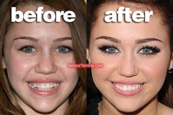 image عکس های قبل و بعد از معروف شدن افراد مشهور