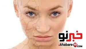 image به بهداشت پوست صورت خود اهمیت بدهید وگرنه