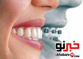 image ارتودنسی دندان ها کاری غلط یا درست
