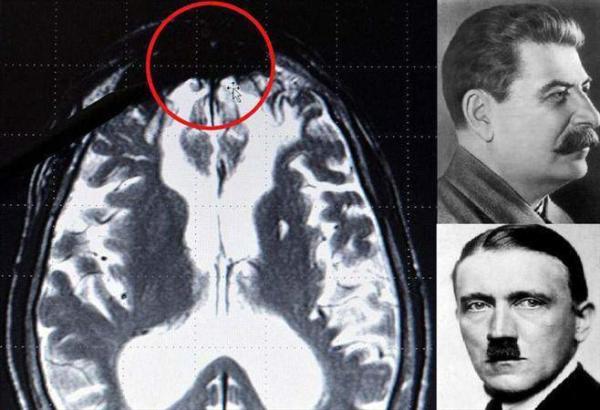 image پیدا کردن جای شیطان در مغز آدم های بد به طور علمی