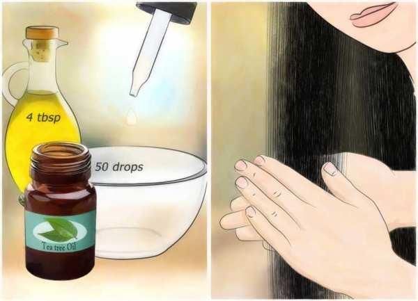 image شپش چطور در سر به وجود می آید و درمان آن