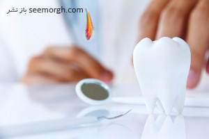 image چه چیزهایی دندان را سریع خراب میکند
