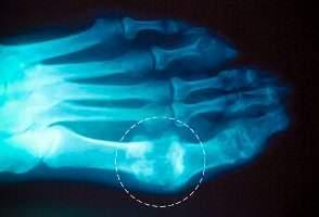 image, اطلاعات کامل و علمی درباره بیماری کج شستی