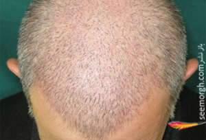 image, آیا مو کاشتن روی سر جواب می دهد
