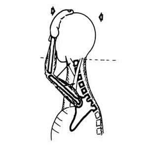image ورزش های تصویری درمان کج نگهداشتن گردن