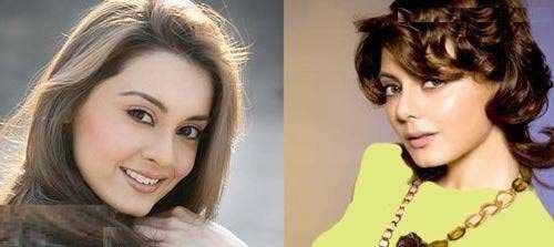 image عکس های قیافه آدم معروفها قبل و بعد از عمل