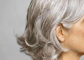 image همه چیز درباره علت سفید شدن موی سر