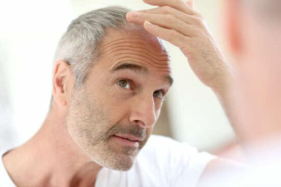 image راههای علمی جلوگیری از ریزش موی ارثی مردان
