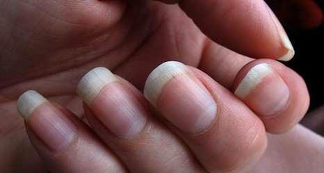 image چطور از روی ناخن بفهمم حالم خوب است یا نه