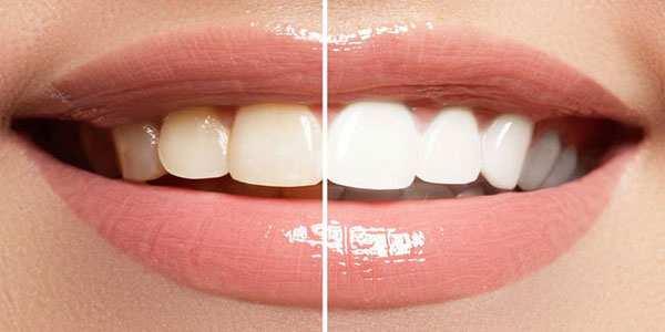 image واقعا جرمگیری دندان ها آنها را خراب میکند