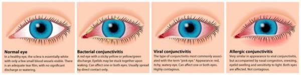 image درمان های خانگی برای رفع قرمزی چشم ها