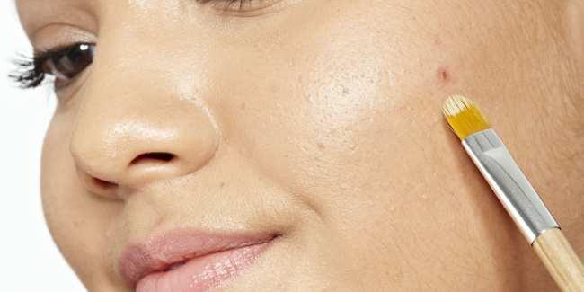 image, چطور بدون دارو و عمل جراحی زائده های پوستی را درمان کنیم