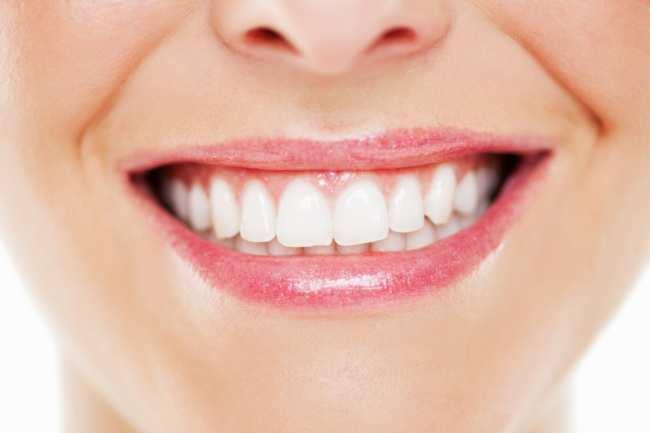 image, چطور بدون زحمت و خرج زیاد دندان هایم را سفید کنم