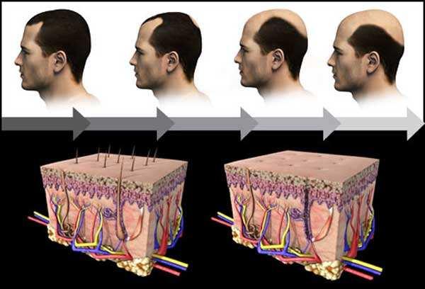 image, چه راه هایی برای جلوگیری از ریختن موی سر در مردان وجود دارد