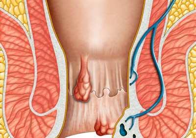 image, همه چیز درباره بواسیر علائم و نحوه درمان و جراحی آن