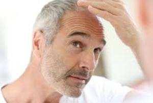 image, شغل هایی که باعث می شود موی سر شما بریزد