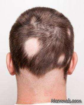 image, علت ریزش یک منطقه کوچک از مو چیست و راه درمان آن