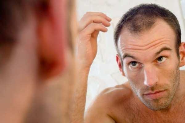 image بهترین مدل مو برای موهای کم پشت مردانه