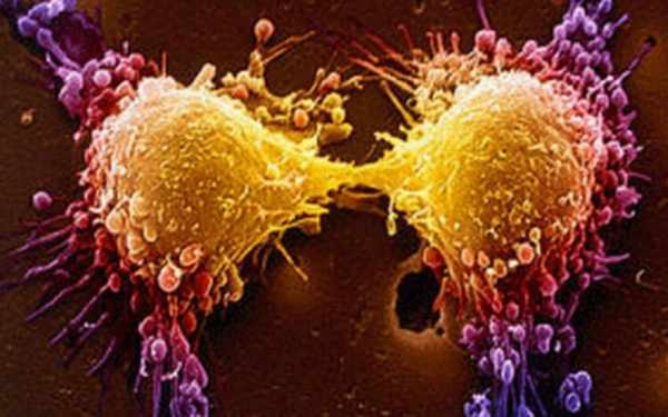 image نشانه های آشکار مبتلا شدن مردان به سرطان پروستات
