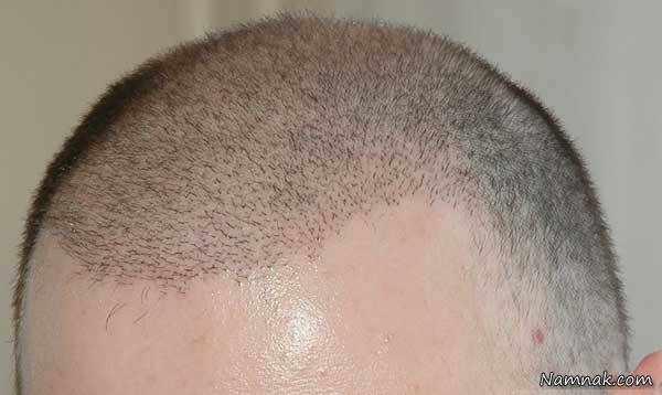 image, همه اطلاعات لازم و دید درباره کاشت مو روش BHT با عکس