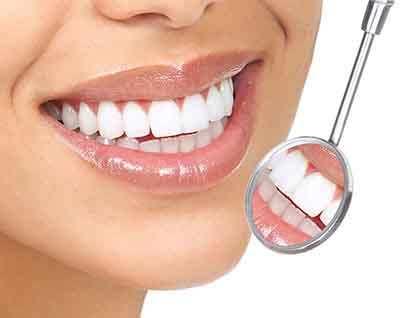image نحوه انجام لمینت دندان و فایده و ضررهای آن