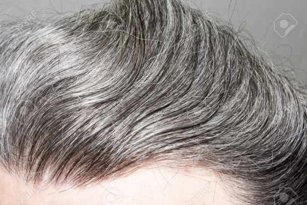 image بهترین راهکارها برای داشتن موهای پرپشت و براق