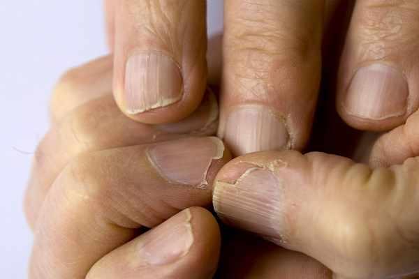 image نشانه های هشدار دهنده ابتلا به پوکی استخوان در مردان