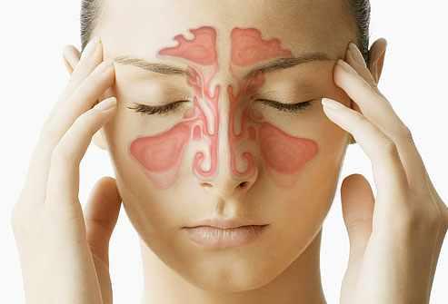 image درمان سینوزیت با روش های خانگی و گیاهی
