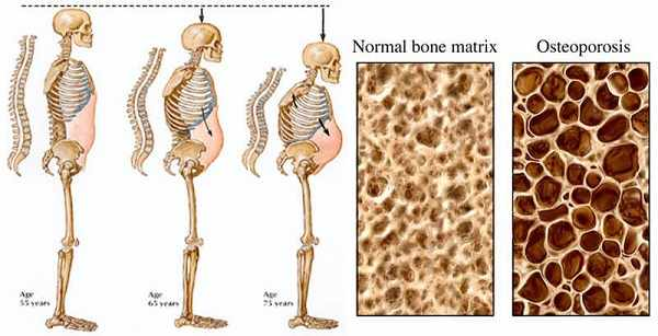 image نوشیدنی های دشمن استخوان های بدن خود را بشناسید