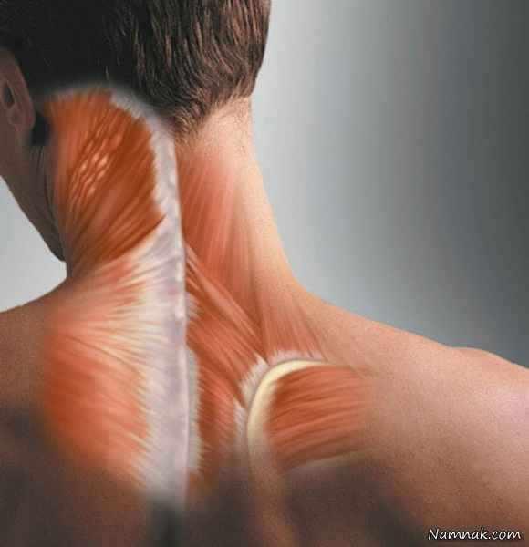 image آیا می دانستید شکستن قولنج گردن مغز شما را خواهد کشت
