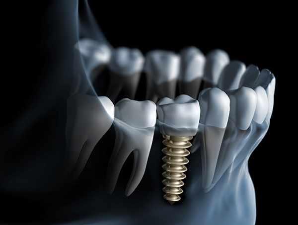 image ایمپلنت یا کاشت دندان چه زمانی لازم است و اطلاعات مفید