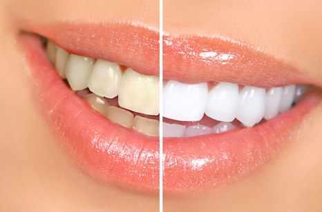 image دندان های خود را در خانه و با مواد طبیعی مثل مروارید درخشان کنید
