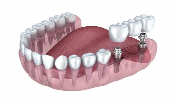 image استفاده از ایمپلنت دندان از چه سنی کاربرد دارد