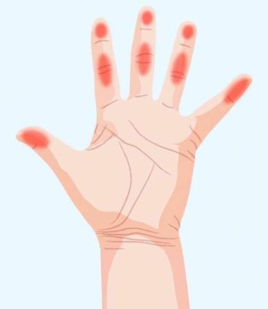 image, بیماری هایی که فقط با نگاه کردن به کف دست می توان تشخیص داد