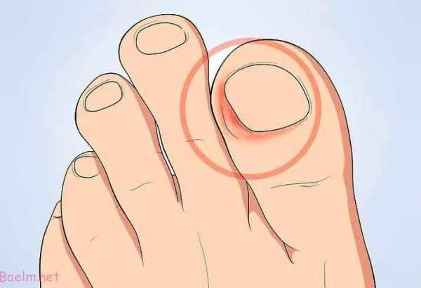 image, چطور مشکل فرو رفتن ناخن در شست پا را درمان کنید