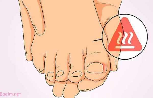 image چطور مشکل فرو رفتن ناخن در شست پا را درمان کنید