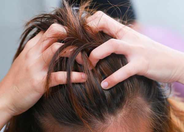 image چطور از موهایی که هم خشک هستند و هم چرب مراقبت کنید