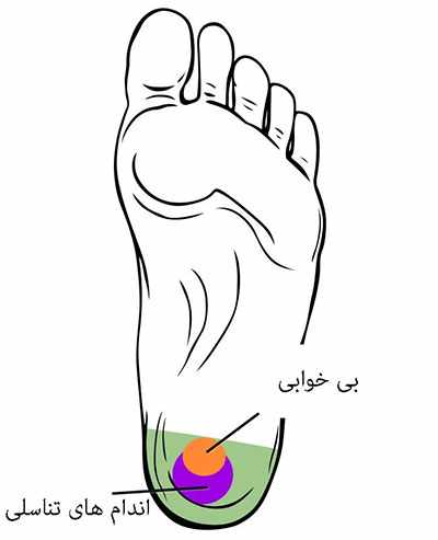 image معرفی نقاط حساس پا با عکس و توضیحات برای ماساژ کف پا