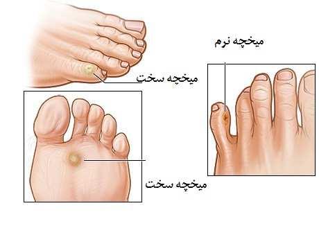 image, چرا پا میخچه می زند و برای درمان آن چه باید کرد