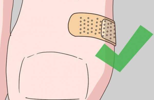 عکس, راهکارهای مفید برای درمان تاول پا
