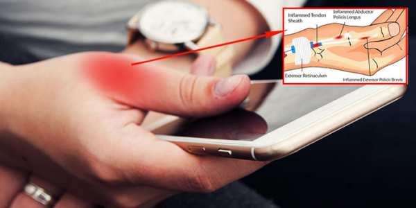 image استفاده زیاد از موبایل باعث چه بیماری هایی می شود